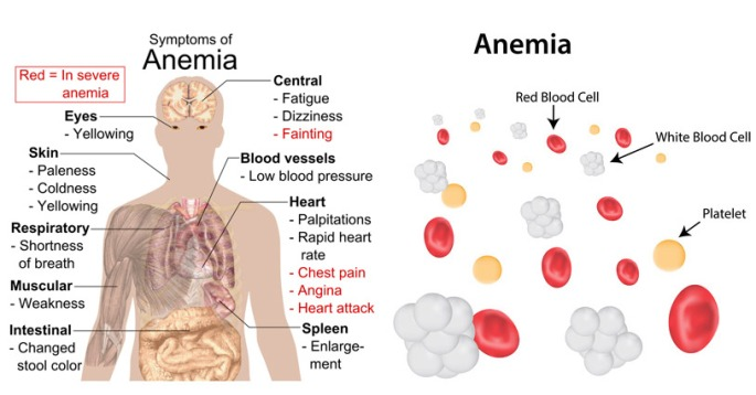 Anemia signs