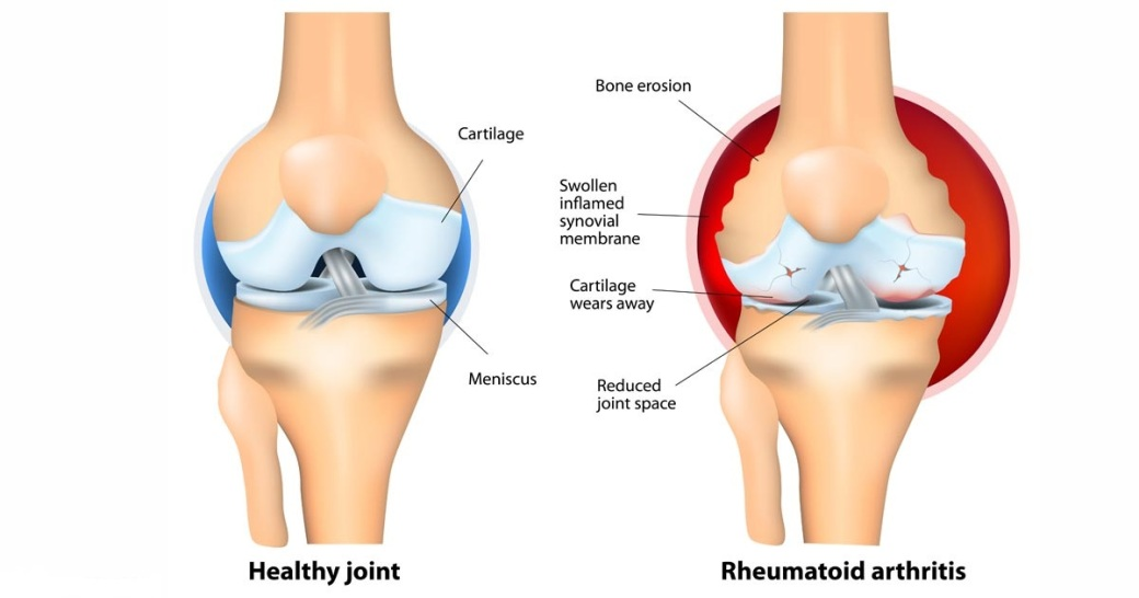 Arthritis vs normal joints