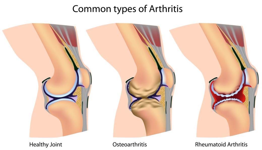 Arthritis types