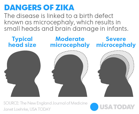 Zika birth defects