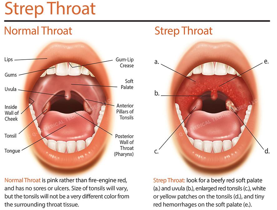 Strep symptom throat